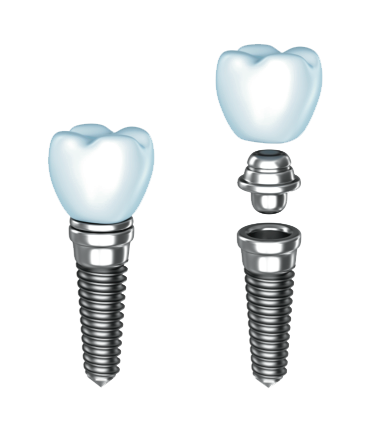 Dental Implants Exploded View